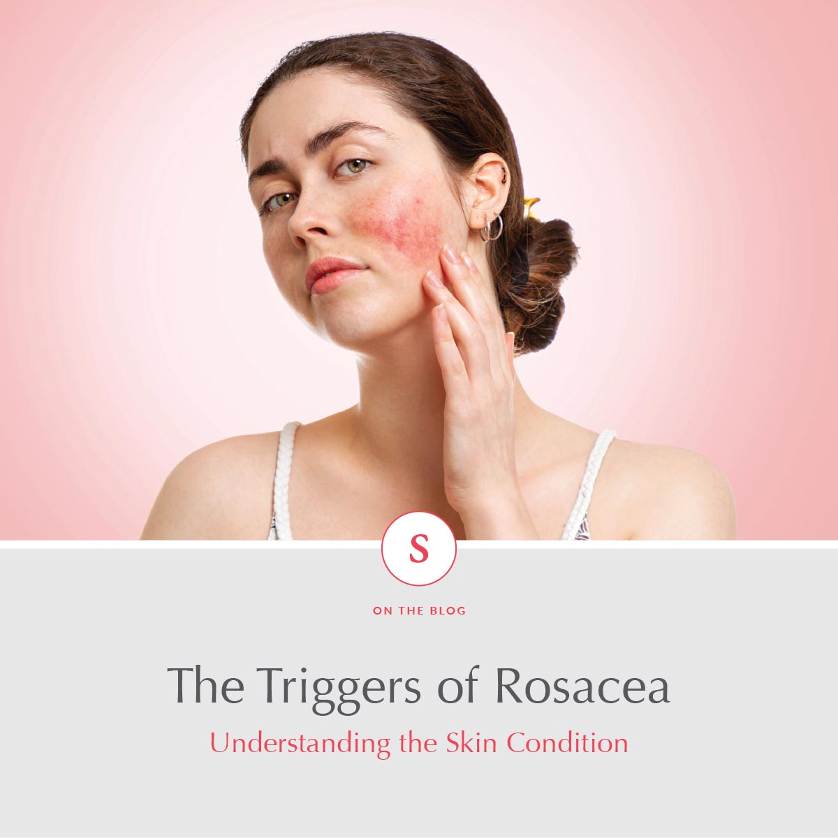 The Triggers of Rosacea